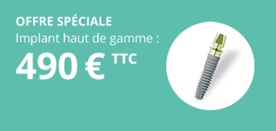 offre speciale implants dentaires